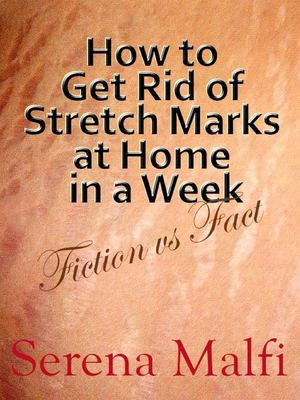 Calaméo - How to Get Rid of Stretch Marks at Home in a Week
